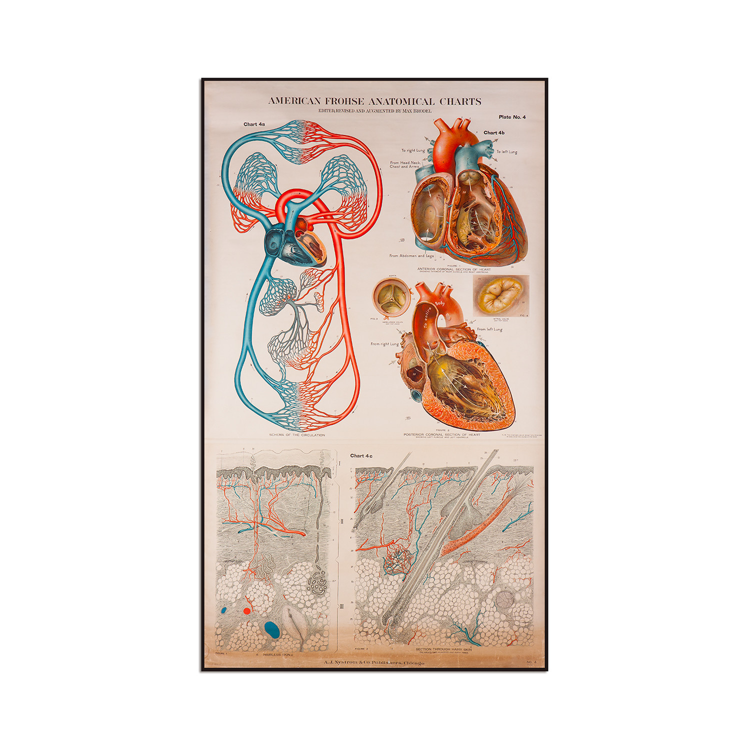 American Frohse Plate 4 (7.25\