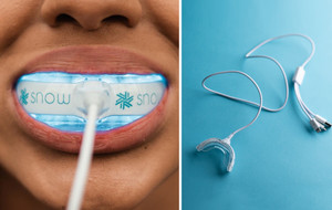 Advanced LED Teeth Whitening